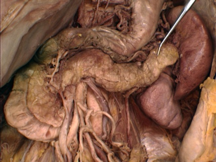 pancreas_cadaveric_dissection_ozimo_gama