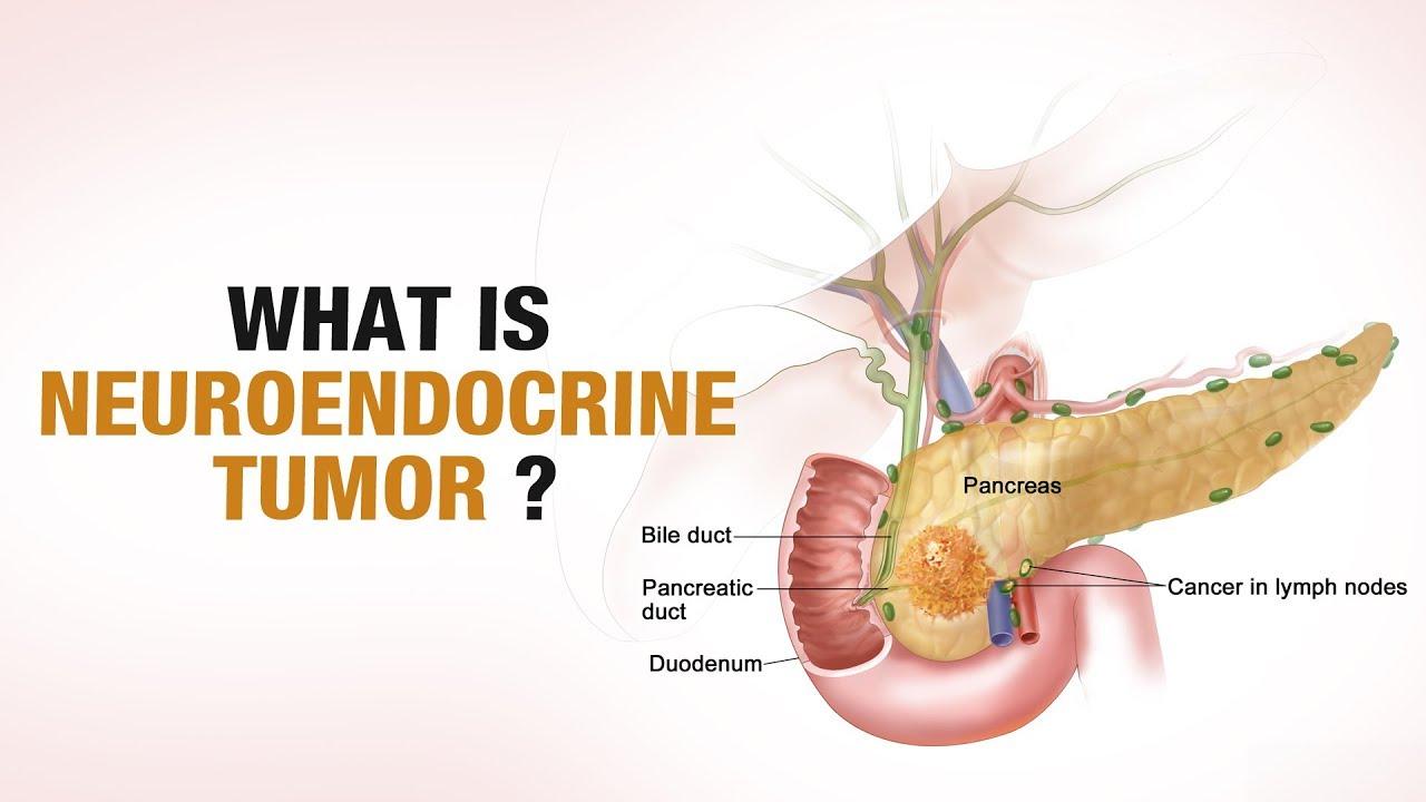 NeuroEndocrine_Tumors